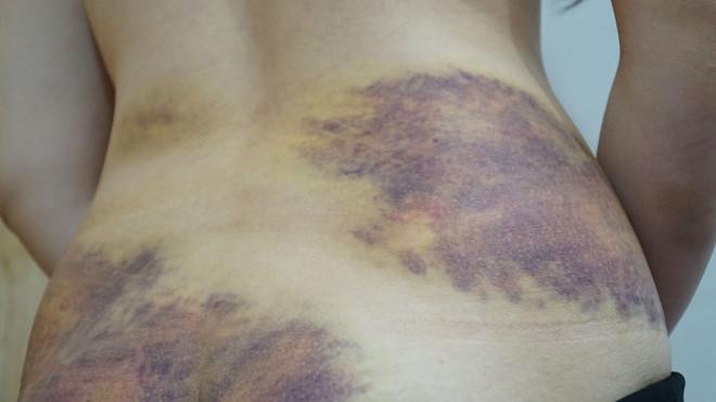 Làm rõ nghi vấn người phụ nữ  bị chồng bạo hành - Ảnh 1