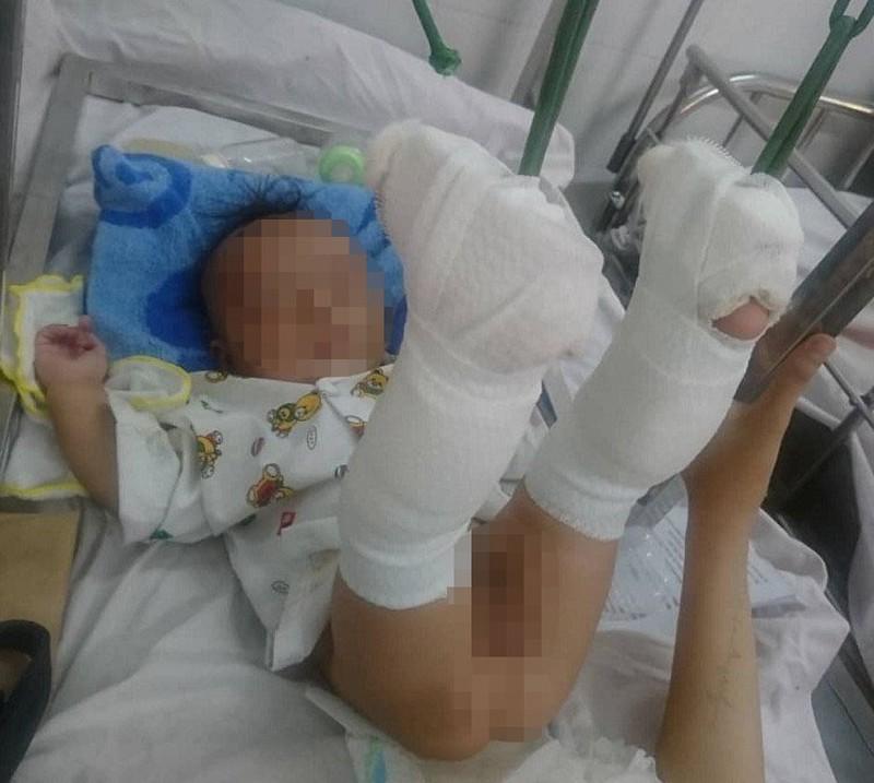 Lời khai của người cha đánh con 4 tháng tuổi xuất huyết não, gãy 2 chân - Ảnh 1