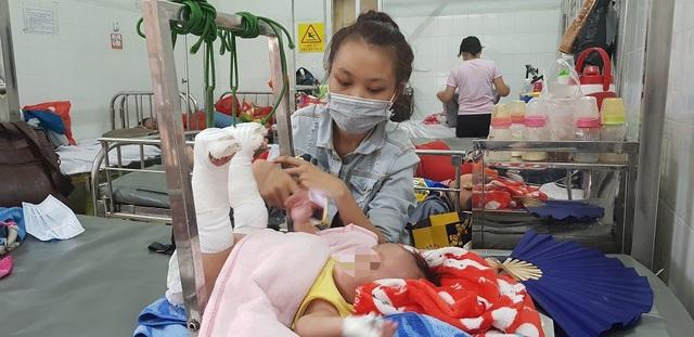 Bé trai 4 tháng tuổi nghi bị bố đánh gãy chân, xuất huyết não - Ảnh 1