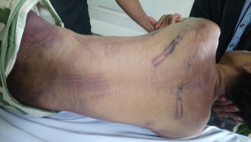Điều tra vụ phạm nhân tử vong trong trại giam với nhiều vết bầm tím - Ảnh 1