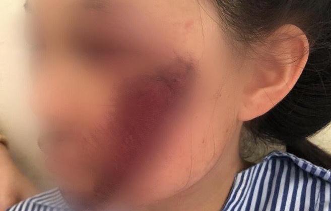 Tin tai nạn giao thông mới nhất ngày 14/7/2020: Áo chống nắng cuốn vào bánh xe khiến nữ sinh ngã đập mặt xuống đất - Ảnh 1