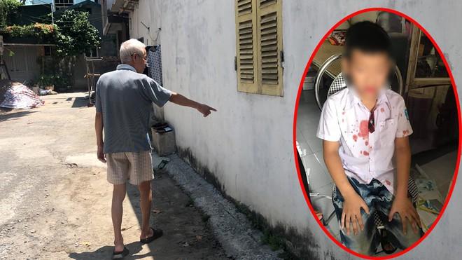 Vụ bé trai lớp 1 bị bố của bạn học hành hung: Nhân chứng bức xúc kể lại sự việc - Ảnh 1