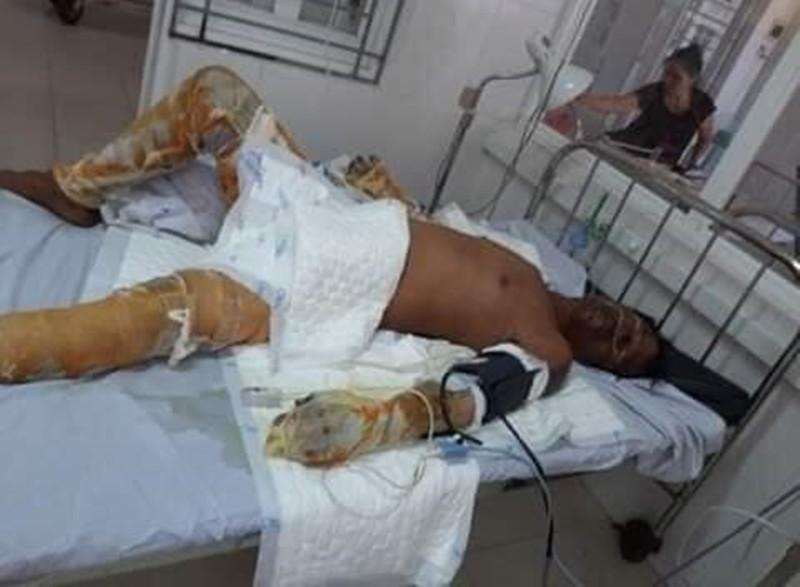 Vụ 4 người trong gia đình bỏng nặng ở Phú Yên: Rùng mình lời khai của kẻ ném bom xăng - Ảnh 1