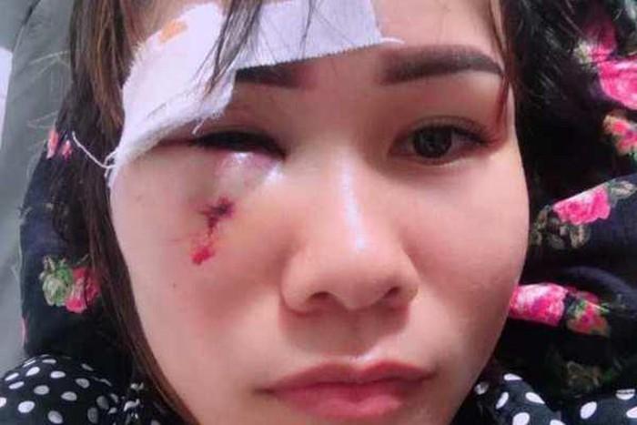 Vụ cán bộ xã bị tố đấm rách mặt người phụ nữ cắt cỏ: Người trong cuộc trần tình gì? - Ảnh 1