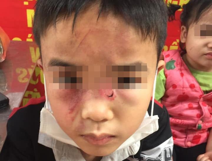 Điều tra vụ bé trai 7 tuổi bị bố đánh bầm tím khắp người - Ảnh 1