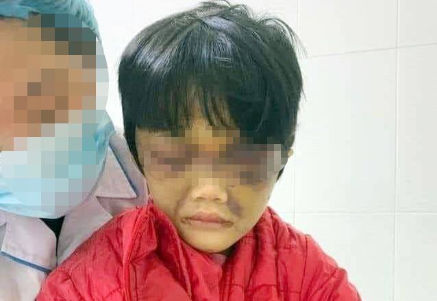 Vụ bé gái 6 tuổi ở Hải Dương bị bạo hành dã man: Tiết lộ sốc về người mẹ - Ảnh 1