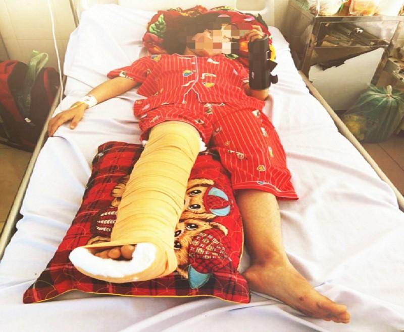 Vụ 2 học sinh bị xế hộp tông gãy chân, tay: Truy tìm tài xế gây tai nạn, bỏ chạy - Ảnh 1