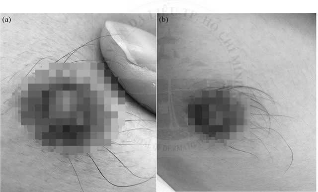 Cảnh báo từ bệnh giang mai đầu vú: Việt Nam xuất hiện ca đầu tiên - Ảnh 1