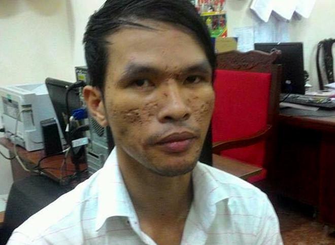 Kẻ đồng tính hành hạ bé trai ở Campuchia được tại ngoại do bị bệnh nan y - Ảnh 1