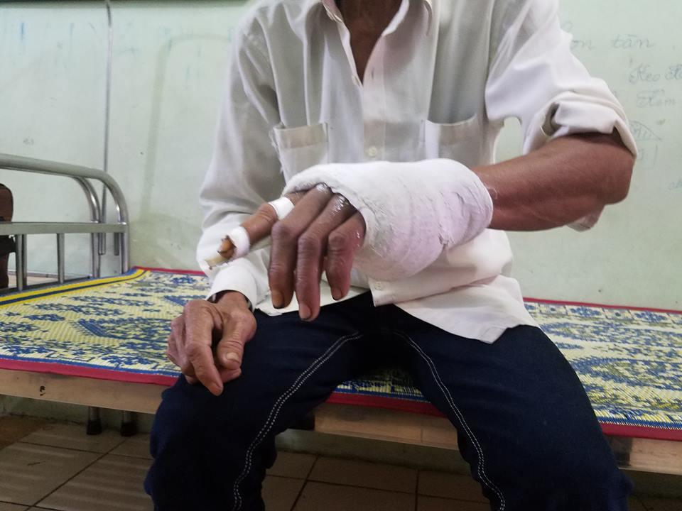 Phó trưởng công an xã bị tố đánh vỡ xương bàn tay người dân - Ảnh 2