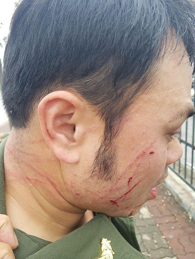 """Tạm giữ người phụ nữ """"cò mồi"""" đánh nhân viên an ninh sân bay Nội Bài gãy 4 răng cửa - Ảnh 1"""