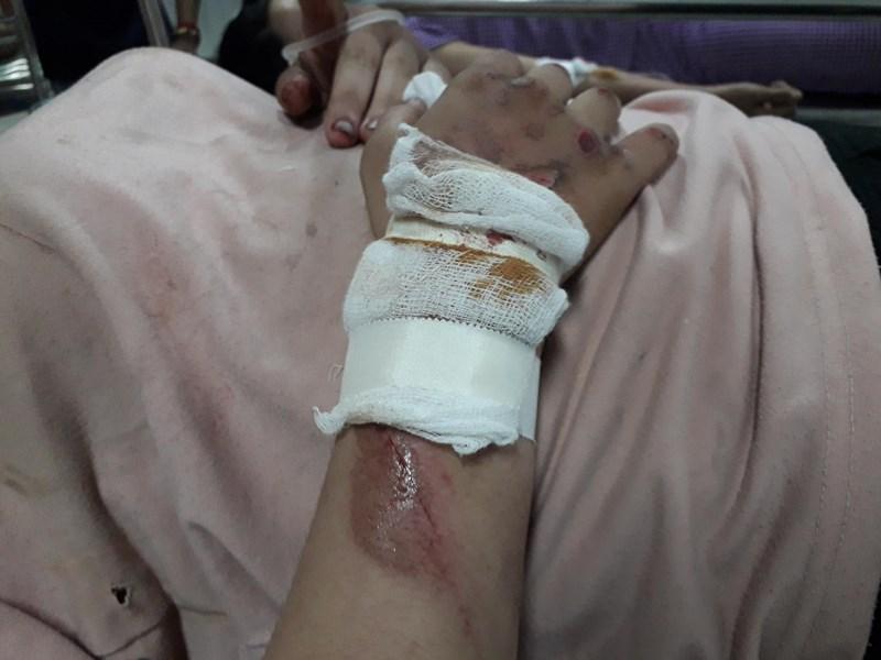 Nữ sinh hoảng loạn kể lại phút bị 2 tên cướp kéo lê gần 20 mét trên đường - Ảnh 1