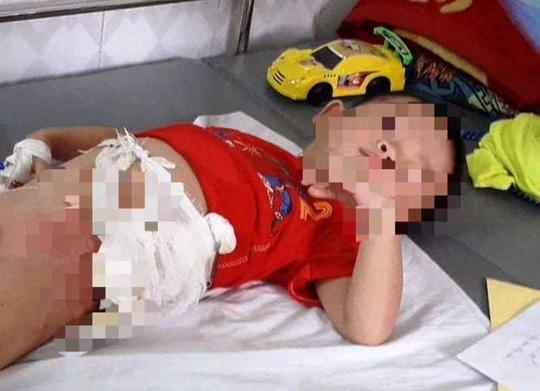Vụ ném bé trai 4 tuổi vào đống lửa ở Hòa Bình: Tạm giữ bác ruột - Ảnh 1