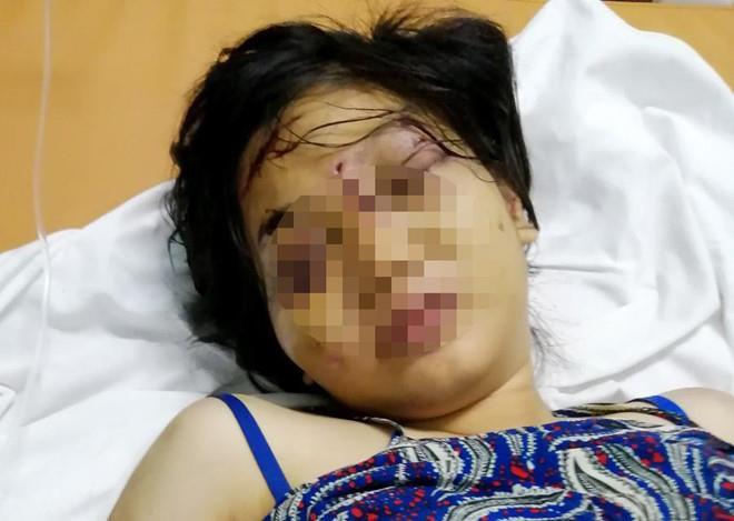 Vụ bà bầu 18 tuổi bị giam, tra tấn đến sẩy thai: Lấy lời khai người đem thai nhi đi vứt bỏ - Ảnh 1