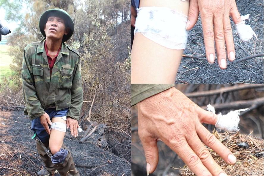 Cảm phục người đàn ông chạy xe hơn 12km để dập lửa vụ cháy rừng ở Hà Tĩnh - Ảnh 2