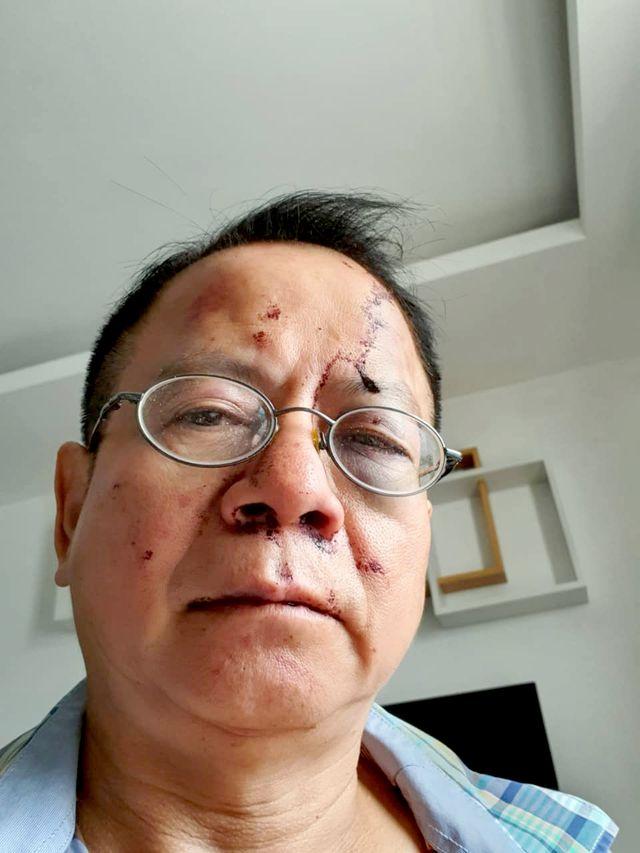 Việt kiều Đức tố bị nhóm thanh niên đánh túi bụi tại quán karaoke - Ảnh 1
