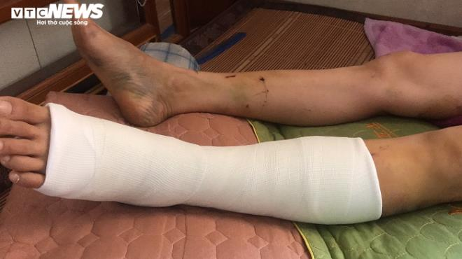 Vụ Trưởng Ban Nội chính Thái Bình nghi gây tai nạn rồi bỏ chạy: Lời kể người phụ nữ thoát chết - Ảnh 1