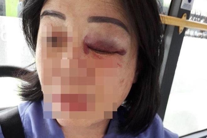 Nhắc khách vặn nhỏ nhạc, nữ nhân viên xe buýt bị đánh bầm mắt - Ảnh 1
