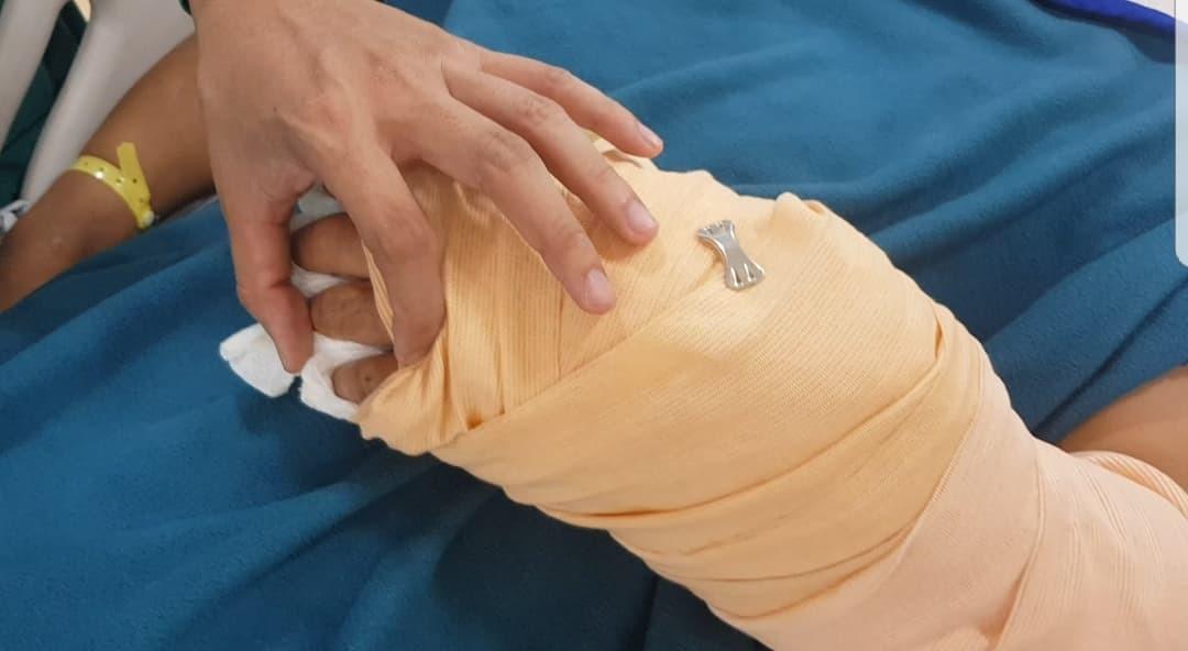 Vụ người đàn ông 53 tuổi bị 2 thanh niên chém lìa bàn tay: Hé lộ nguyên nhân - Ảnh 1