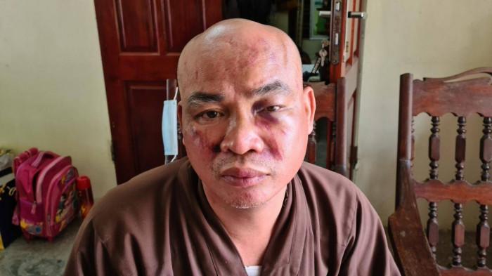 Vụ sư chùa Thiên Mụ trình báo bị đánh vỡ xương mũi: Chủ tịch xã nói gì? - Ảnh 1