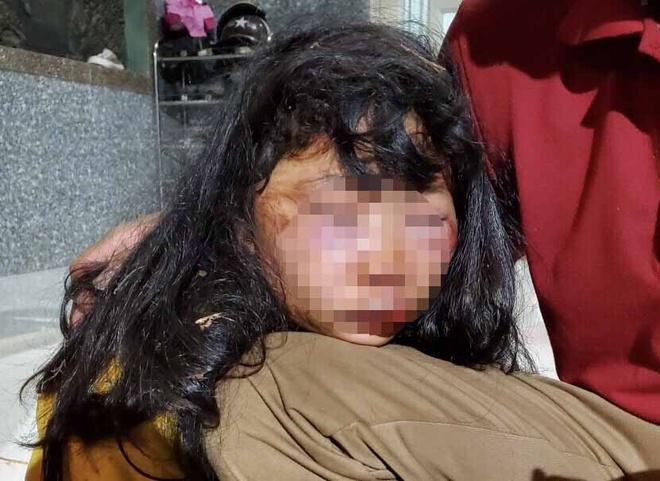 Vụ nữ sinh lớp 6 bị giật tóc, đánh ngất xỉu trong lô cao su: Người thân tiết lộ bất ngờ - Ảnh 1
