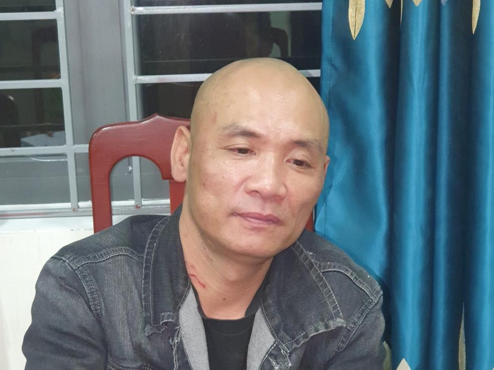 Vụ công an bị đánh gãy ngón tay ở Hà Tĩnh: Chân dung gã đầu trọc Trần Quang Trung - Ảnh 1