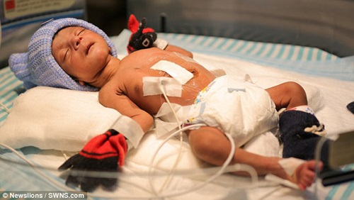 Cứu sống bé trai có 4 chân, 2 cơ quan sinh dục - Ảnh 1