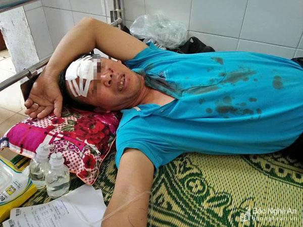 Vụ xe buýt đối đầu, 4 người thương nặng phải nhập viện - Ảnh 2