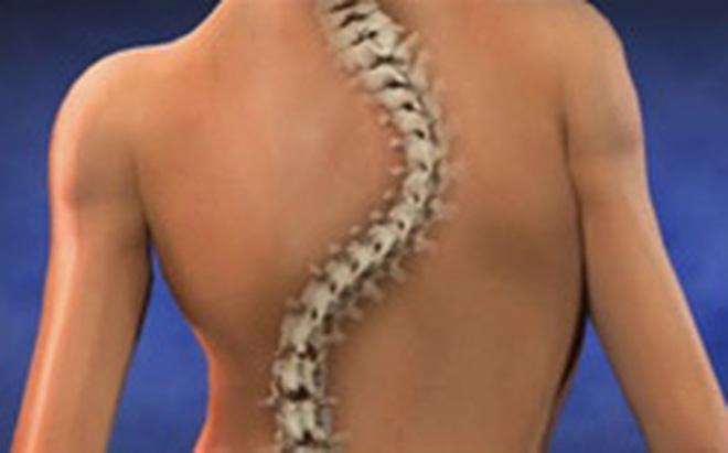 Căn bệnh lạ khiến thiếu nữ có cột sống cong như chữ S, tay chân dài như nhện - Ảnh 1