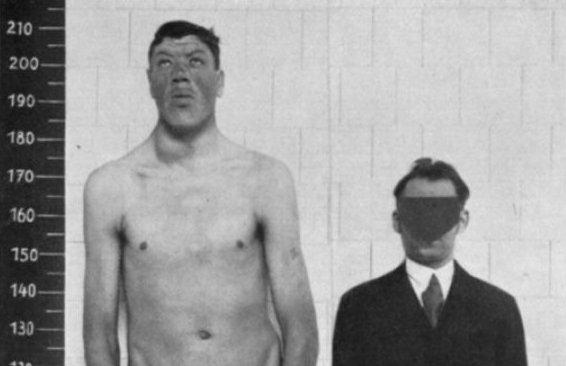 Căn bệnh lạ khiến người đàn ông sinh ra rất lùn nhưng qua đời là người khổng lồ - Ảnh 1