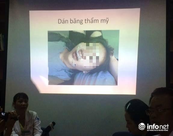 Mất 3 giờ phẫu thuật và hơn 5m chỉ cứu bé gái bị cửa kính găm vào mặt - Ảnh 1