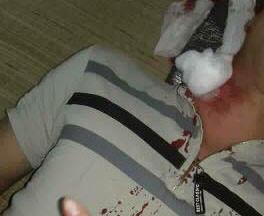 Thanh niên bất ngờ bị đạn găm trúng cổ khi đang nằm trong nhà - Ảnh 1