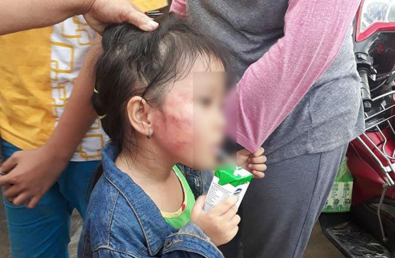 Vụ bé gái bị bảo mẫu tát rạn xương hàm: Phát hiện trong tai bé có máu bầm - Ảnh 1
