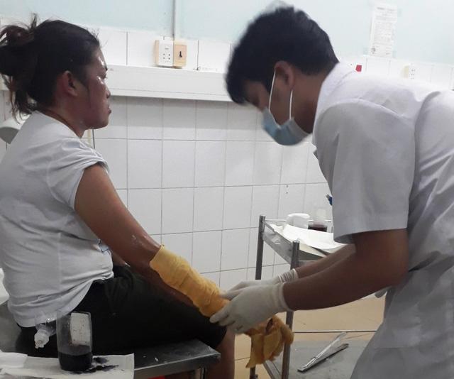 Bình gas mini phát nổ trong lúc ăn đêm ở Phú Quốc, 7 du khách bị bỏng - Ảnh 1