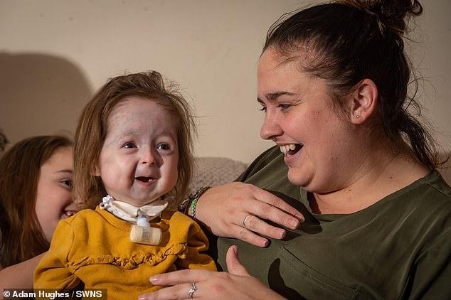 Bé gái 2 tuổi mắc chứng bệnh hiếm gặp, xương bị biến dạng, khuôn mặt lão hóa như cụ già - Ảnh 1
