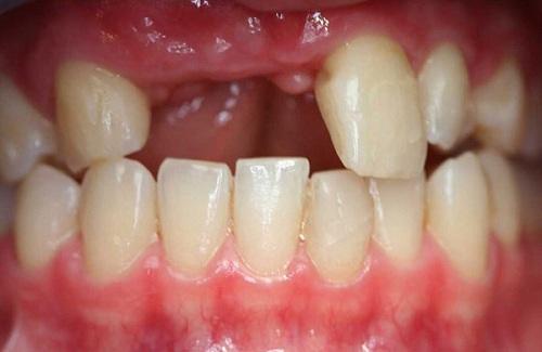 Tiêu xương do mất răng? Bạn không cần phải lo lắng! - Ảnh 1
