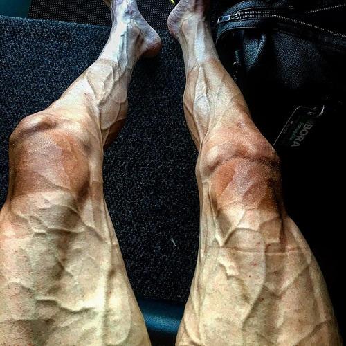 Đôi chân biến đổi khác thường sau khi đạp xe gần 3.000km dưới trời nắng - Ảnh 1