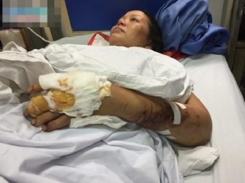 Dập nát hết tay chân, người mẹ vẫn cố bới đất đá cứu con bị chôn vùi dưới đống đổ nát - Ảnh 1