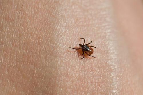 Mất mạng chỉ vì vết cắn bọ chét - Ảnh 1
