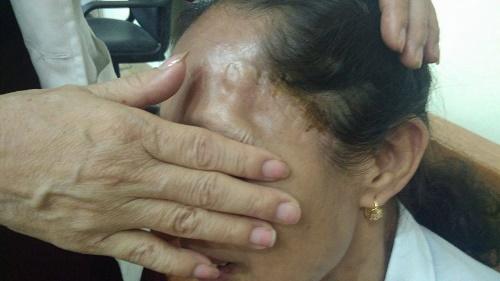 Người đàn bà 2 lần mổ não do tai biến, khỏe lại thần kỳ nhờ lọ thuốc gia truyền - Ảnh 1
