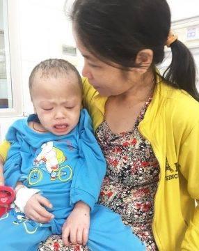 Cậu bé mắc bệnh hiếm, không được ghép tủy thời gian sống trên cõi đời không tính bằng năm - Ảnh 1