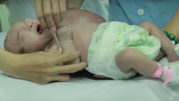"""Kích cỡ khối u tăng """"thần tốc"""", bác sĩ kịp thời phẫu thuật cứu cháu bé - Ảnh 1"""