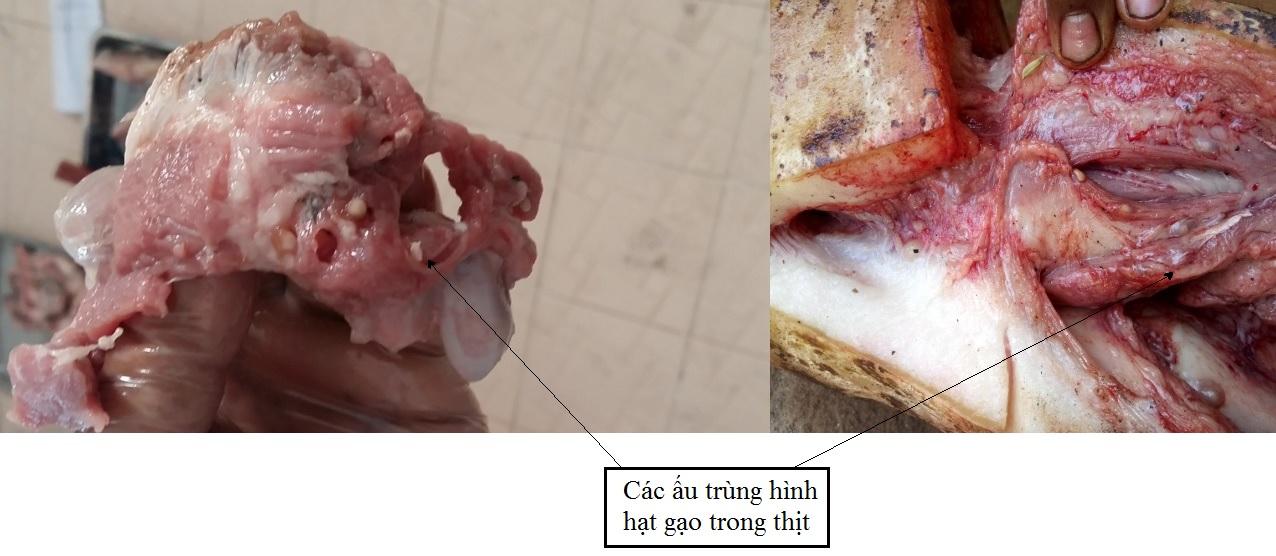 """Ăn món khoái khẩu từ thịt lợn, thịt bò tái: Sán dây """"tấn công"""" lên não nguy kịch - Ảnh 1"""