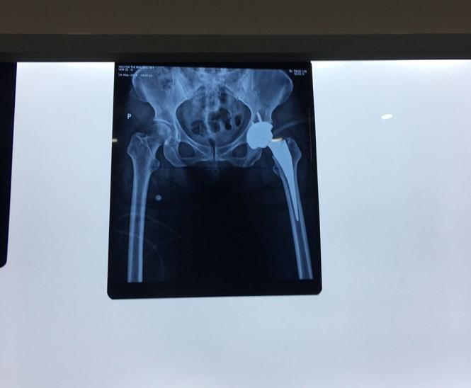 """Sau phẫu thuật thay khớp háng tại BV 108: Bệnh nhân bị """"chân dài, chân ngắn"""" - Ảnh 2"""