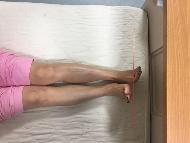 """Sau phẫu thuật thay khớp háng tại BV 108: Bệnh nhân bị """"chân dài, chân ngắn"""" - Ảnh 1"""