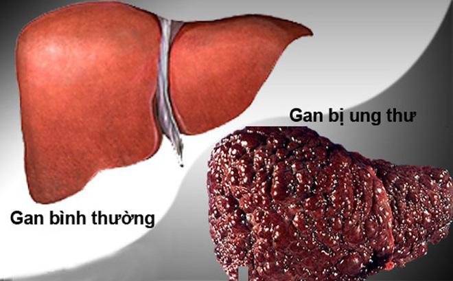 Loại đồ uống làm hại gan, tăng tỷ lệ tử vong - Ảnh 1