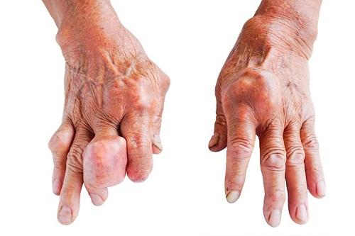 Nguyên nhân và triệu chứng thường gặp của bệnh gout - Ảnh 1