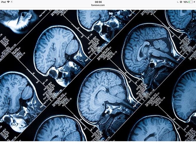 Dừng ca phẫu thuật não vì phát hiện mổ nhầm bệnh nhân - Ảnh 1