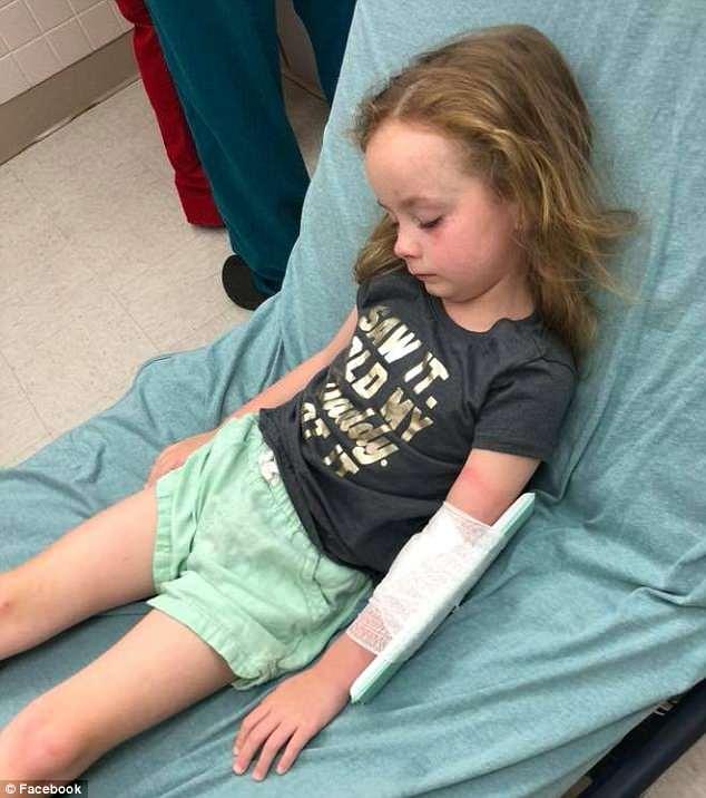 Đau lòng cô bé 5 tuổi bị liệt tạm thời vì bọ ve cắn vào đầu  - Ảnh 1