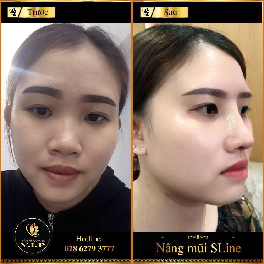 Bỏ qua các mẹo make-up nhưng vẫn đẹp lung linh nhờ mũi Sline - Ảnh 7
